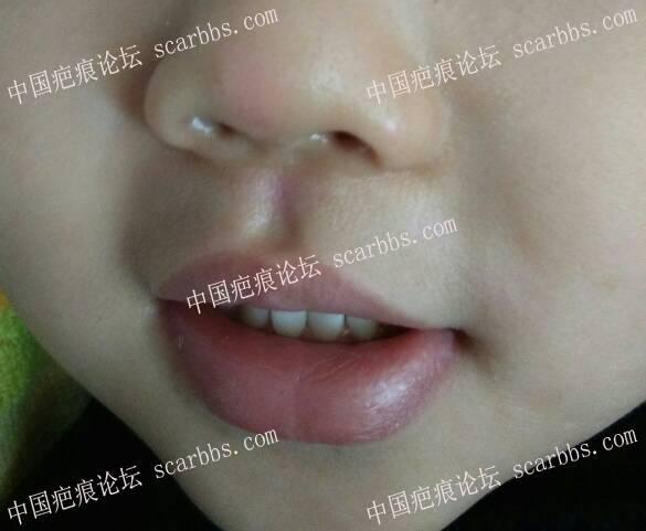 浅谈表皮擦伤后如何正确护理14-疤痕体质图片_疤痕疙瘩图片-中国疤痕论坛