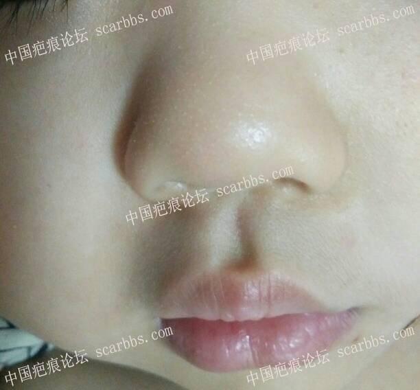 浅谈表皮擦伤后如何正确护理54-疤痕体质图片_疤痕疙瘩图片-中国疤痕论坛