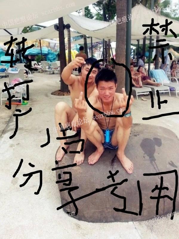 8年的痘痘,我本来都绝望了!其实自己努力还是有结果的, 劝大家都不要买产品,53-疤痕体质图片_疤痕疙瘩图片-中国疤痕论坛