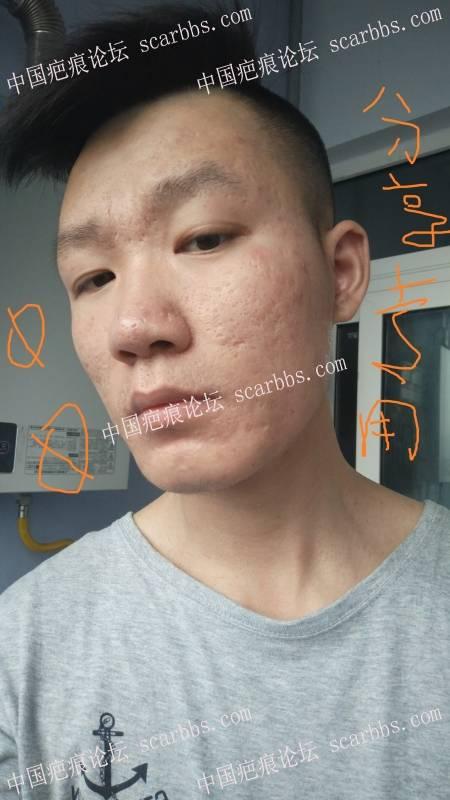 8年的痘痘,我本来都绝望了!其实自己努力还是有结果的, 劝大家都不要买产品,25-疤痕体质图片_疤痕疙瘩图片-中国疤痕论坛