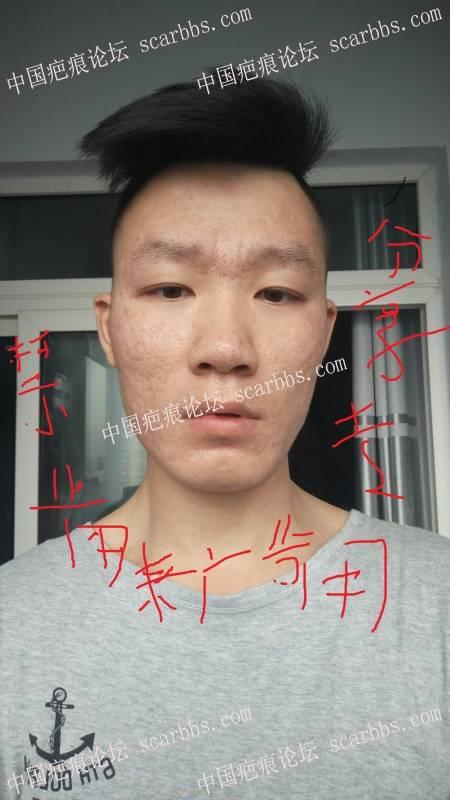 8年的痘痘,我本来都绝望了!其实自己努力还是有结果的, 劝大家都不要买产品,89-疤痕体质图片_疤痕疙瘩图片-中国疤痕论坛