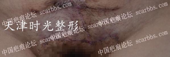 背部+腹部疤痕疙瘩切除21-疤痕体质图片_疤痕疙瘩图片-中国疤痕论坛