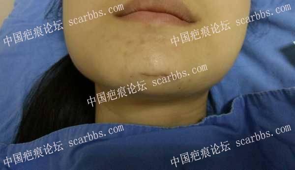 求助医生和疤友们:下巴磕伤胶水粘合近一月,还是很红31-疤痕体质图片_疤痕疙瘩图片-中国疤痕论坛