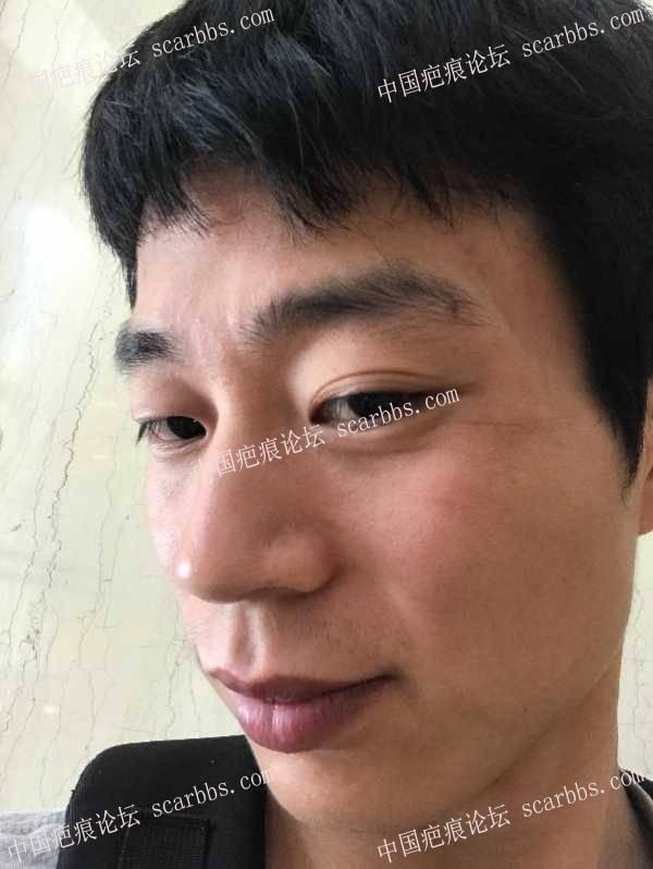 找上海九院武晓莉去除了面部凹陷疤痕