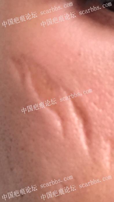 10多年的面部凹陷疤痕,能弄好吗?