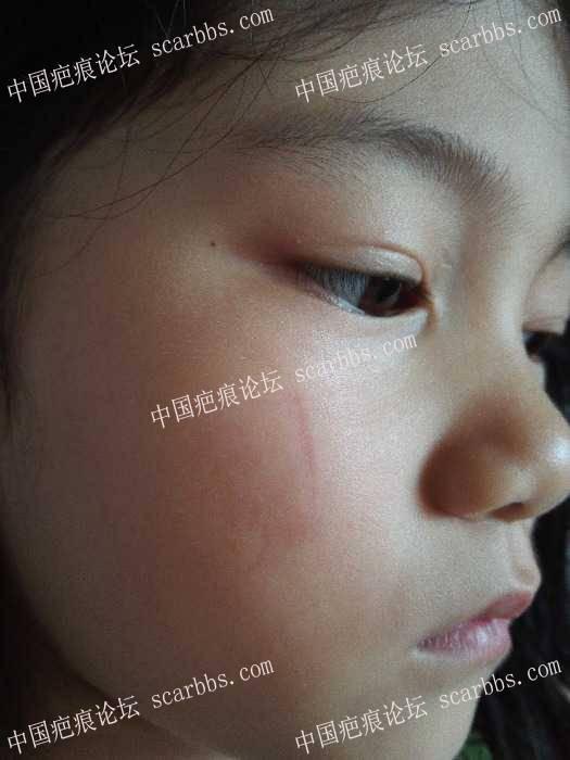 求助杨教授,6岁小女孩面部疤痕未缝合现变宽有什么方法补救?75-疤痕体质图片_疤痕疙瘩图片-中国疤痕论坛