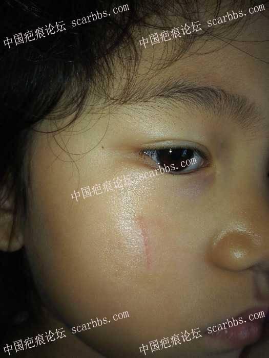 求助杨教授,6岁小女孩面部疤痕未缝合现变宽有什么方法补救?66-疤痕体质图片_疤痕疙瘩图片-中国疤痕论坛