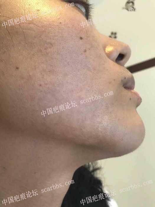 今天刚刚结束面部疤痕plasma第一次治疗,期待结果。