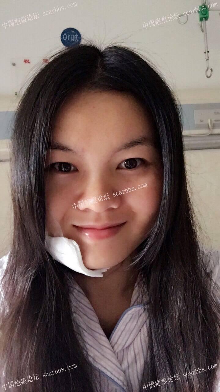 记录一下我扩张器祛疤的过程,持续更新中46-疤痕体质图片_疤痕疙瘩图片-中国疤痕论坛