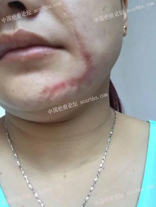 面部烫伤疤痕扩张器手术,希望自己快点恢复