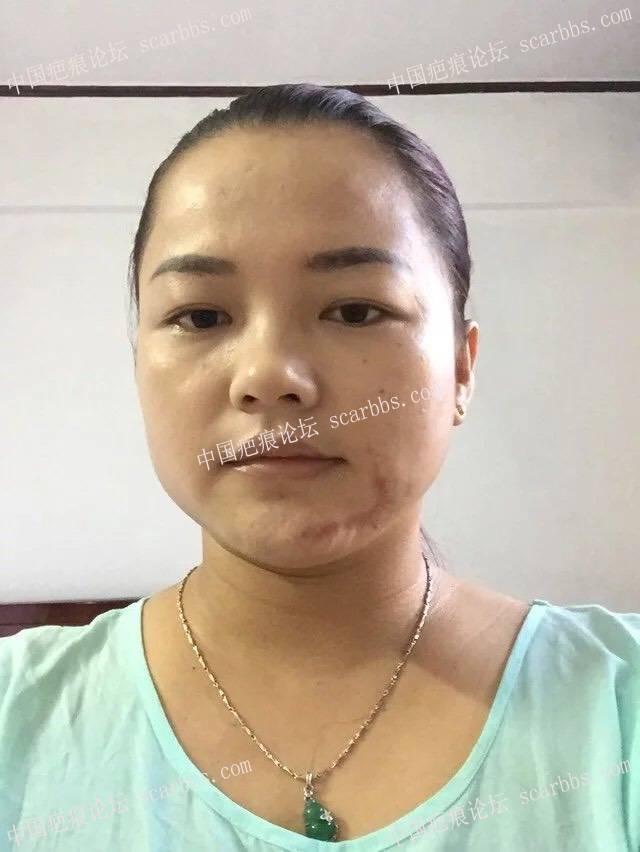 面部烫伤疤痕扩张器手术,希望自己快点恢复到无疤26-疤痕体质图片_疤痕疙瘩图片-中国疤痕论坛