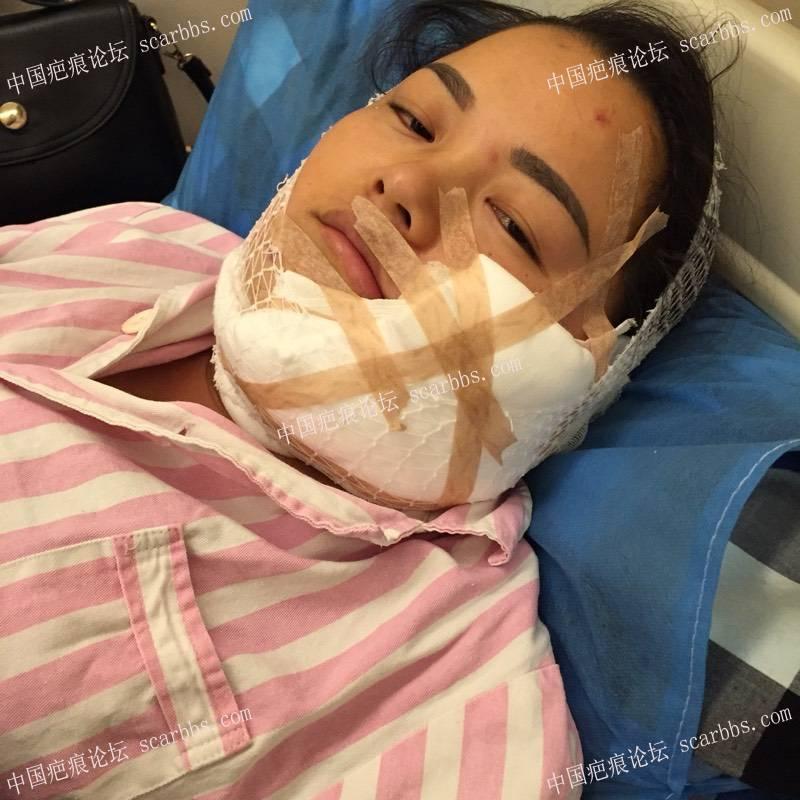 面部烫伤疤痕扩张器手术,希望自己快点恢复到无疤32-疤痕体质图片_疤痕疙瘩图片-中国疤痕论坛