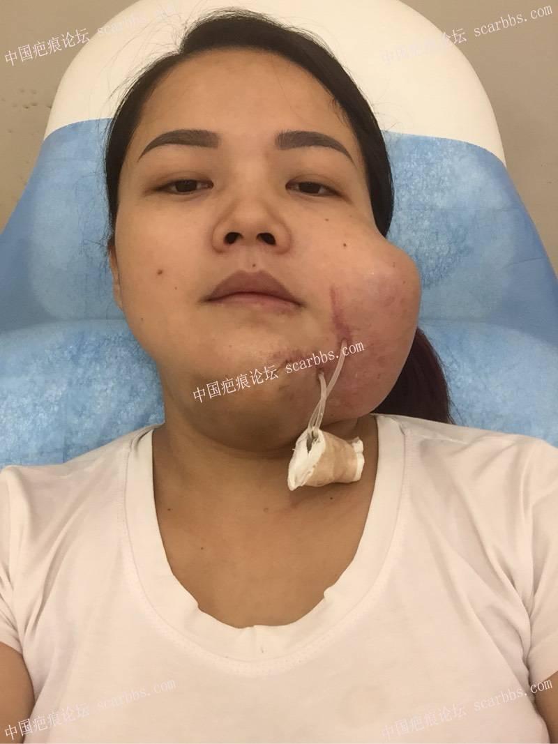 面部烫伤疤痕扩张器手术,希望自己快点恢复到无疤61-疤痕体质图片_疤痕疙瘩图片-中国疤痕论坛
