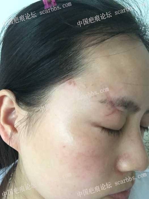 车祸玻璃划伤眉骨疤痕祛除求教大家
