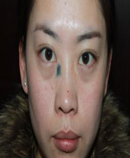 暑期免费治疤攻略45-疤痕体质图片_疤痕疙瘩图片-中国疤痕论坛