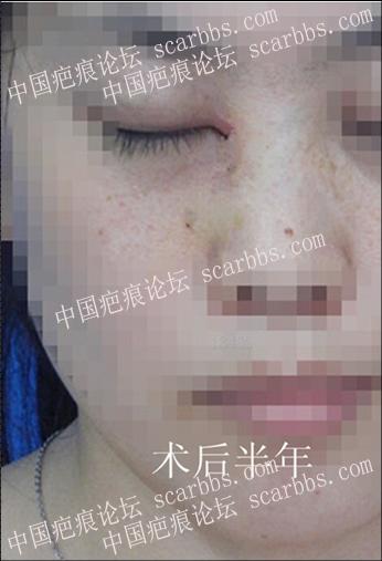 暑期免费治疤攻略93-疤痕体质图片_疤痕疙瘩图片-中国疤痕论坛