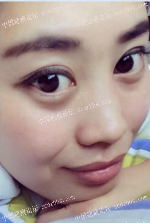 暑期免费治疤攻略69-疤痕体质图片_疤痕疙瘩图片-中国疤痕论坛
