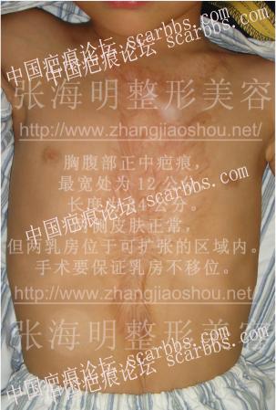 暑期免费治疤攻略98-疤痕体质图片_疤痕疙瘩图片-中国疤痕论坛