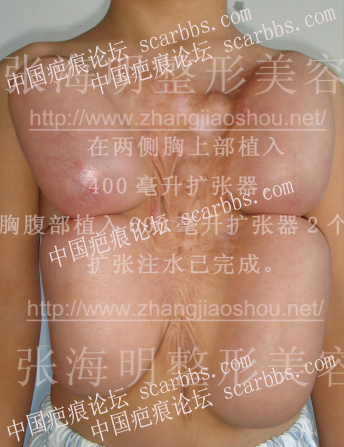 暑期免费治疤攻略37-疤痕体质图片_疤痕疙瘩图片-中国疤痕论坛
