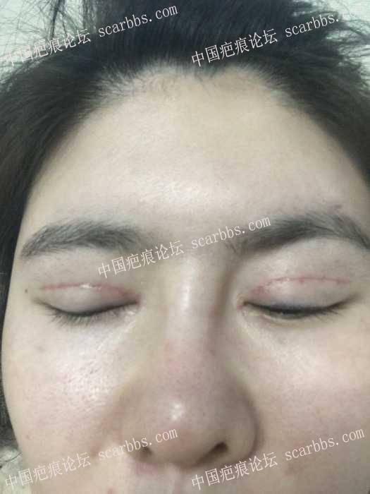 上海薇琳医疗美容医院对术后医疗事故拒不处理