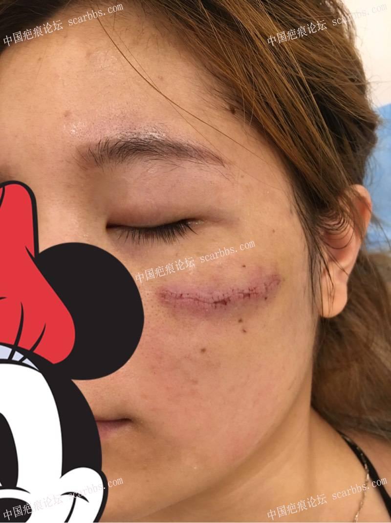 脸上的旧疤痕,今天找杨教授手术了、期待效果!99-疤痕体质图片_疤痕疙瘩图片-中国疤痕论坛