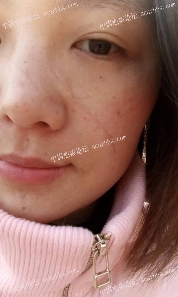 面部凹陷疤痕手术切除整整一年,恢复效果分享66-疤痕体质图片_疤痕疙瘩图片-中国疤痕论坛
