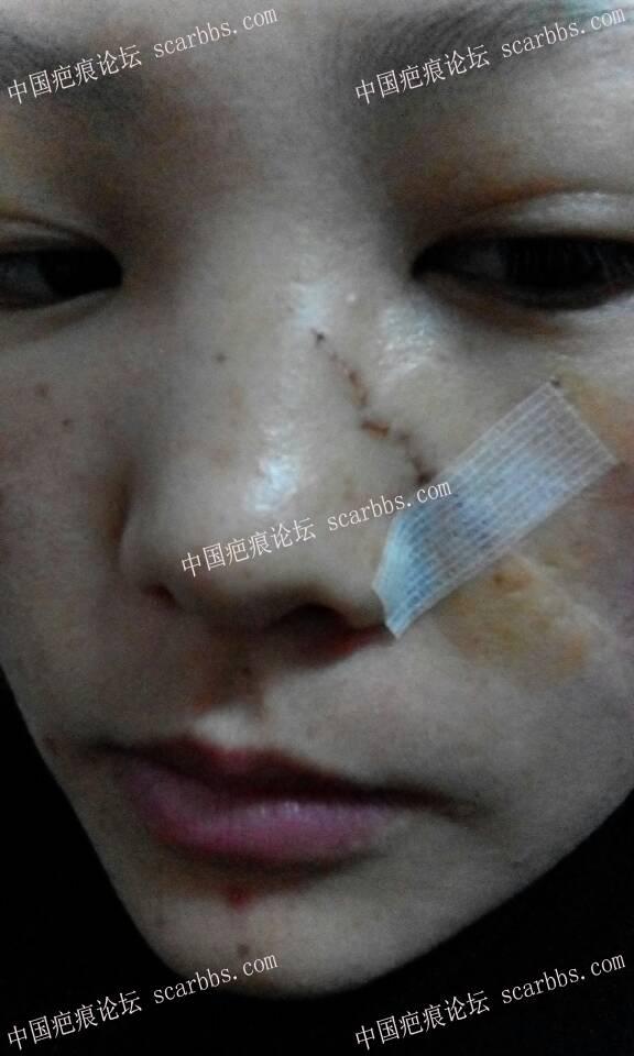 面部凹陷疤痕手术切除整整一年,恢复效果分享9-疤痕体质图片_疤痕疙瘩图片-中国疤痕论坛