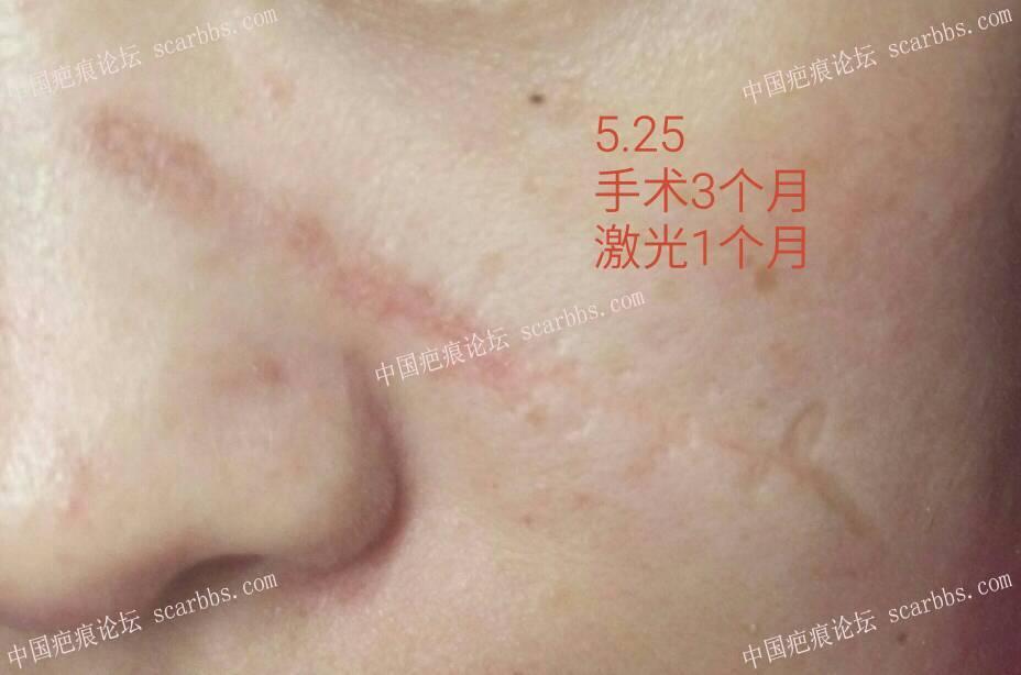面部凹陷疤痕手术切除整整一年,恢复效果分享