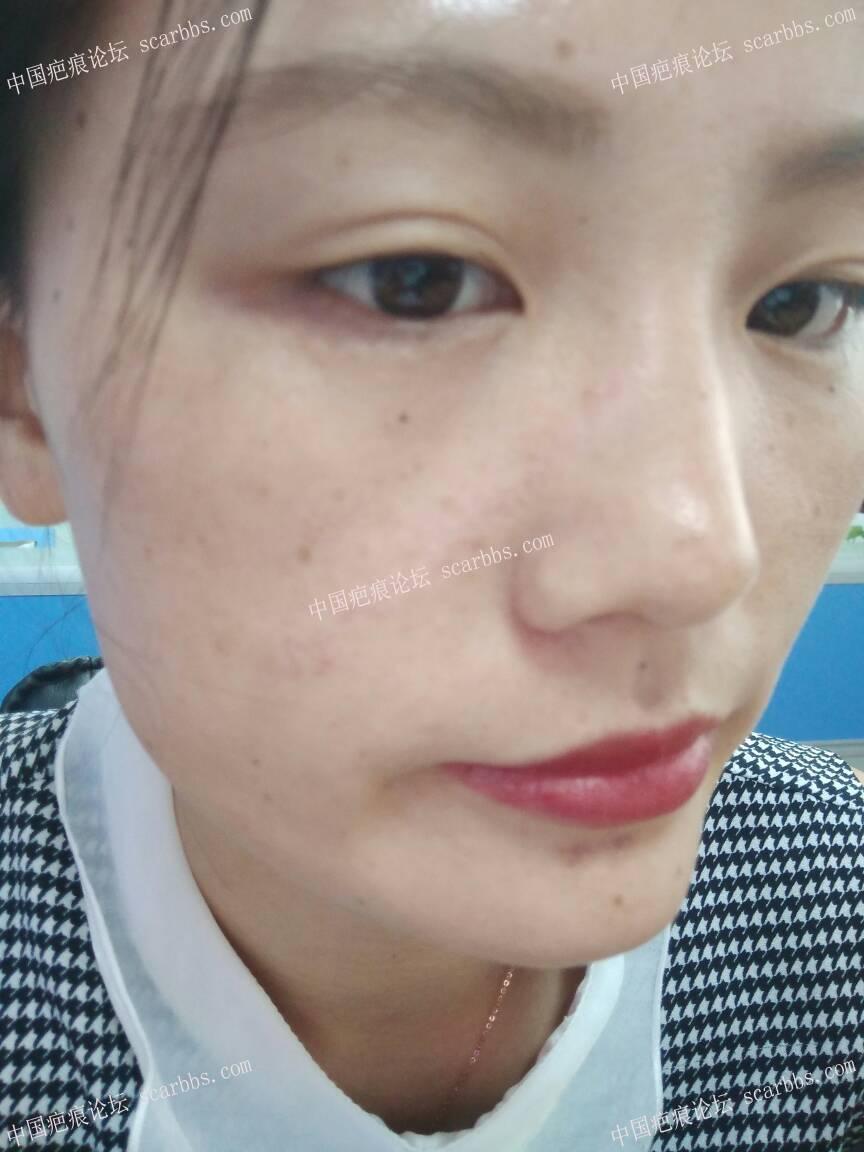 面部凹陷疤痕手术切除整整一年,恢复效果分享91-疤痕体质图片_疤痕疙瘩图片-中国疤痕论坛