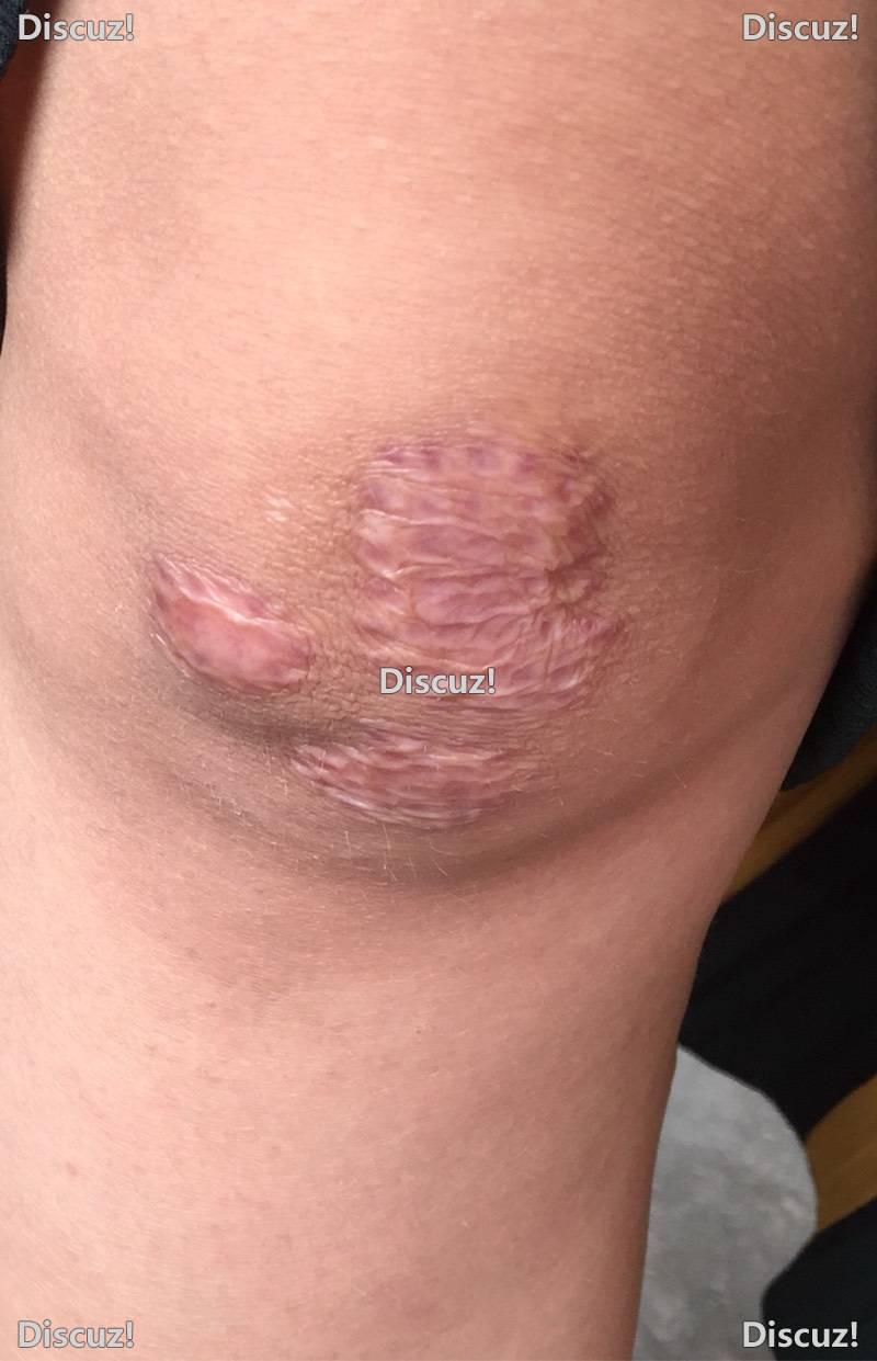 漆盖处的疤痕增生,做了两次点振激光谁有好办法84-疤痕体质图片_疤痕疙瘩图片-中国疤痕论坛