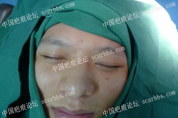 """""""爱无痕""""新疤克疤痕修复公益活动(201708期)59-疤痕体质图片_疤痕疙瘩图片-中国疤痕论坛"""