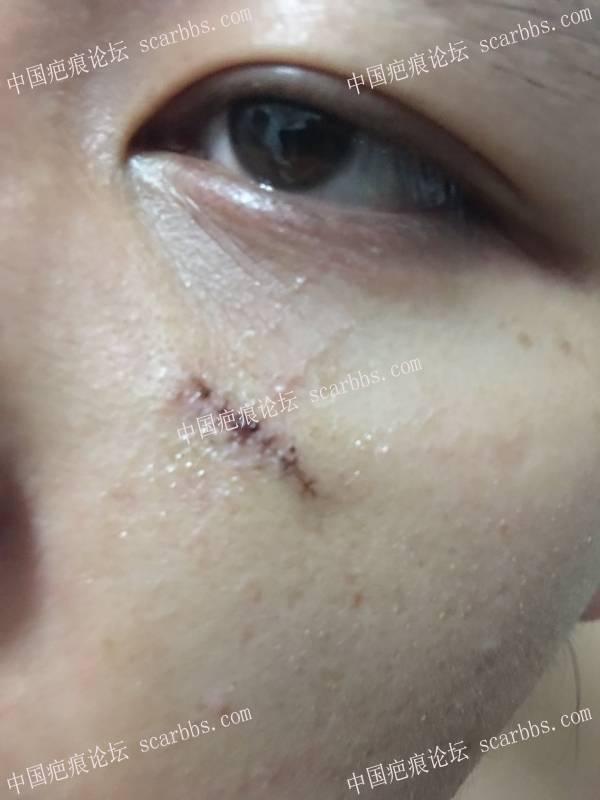 """""""爱无痕""""新疤克疤痕修复公益活动(201708期)82-疤痕体质图片_疤痕疙瘩图片-中国疤痕论坛"""