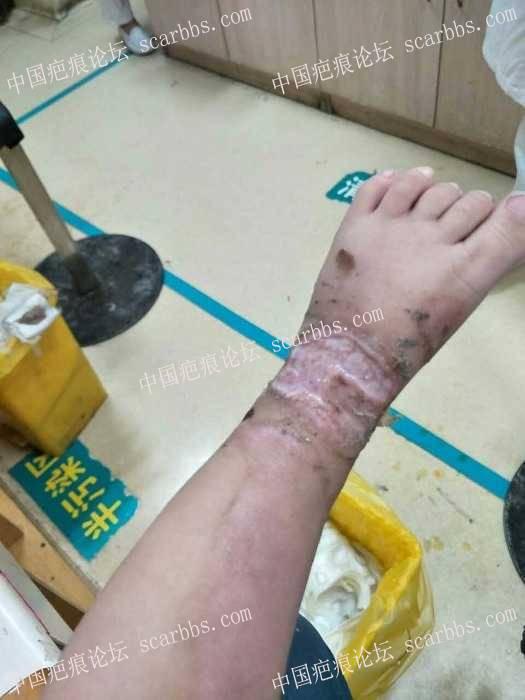 宝宝11个月脚背7月26号烫伤一月多还未愈合!