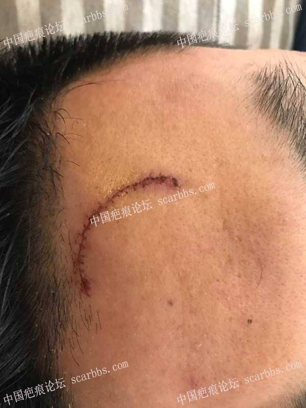 开贴记录额头7cm半弧形伤口疤痕恢复 额头,缝针