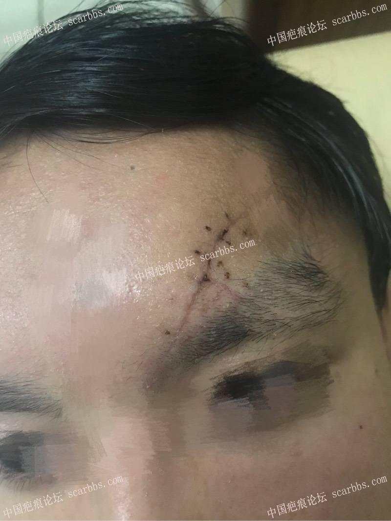 开贴记录额头7cm半弧形伤口疤痕恢复 额头,缝针,