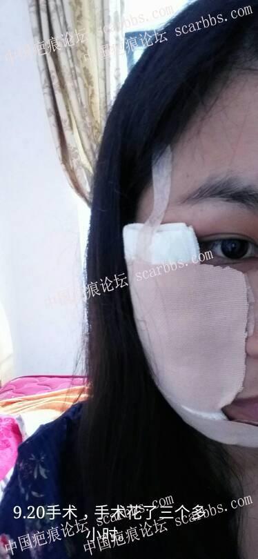 9.20号面部切缝手术,发出来给朋友们做个参考4-疤痕体质图片_疤痕疙瘩图片-中国疤痕论坛