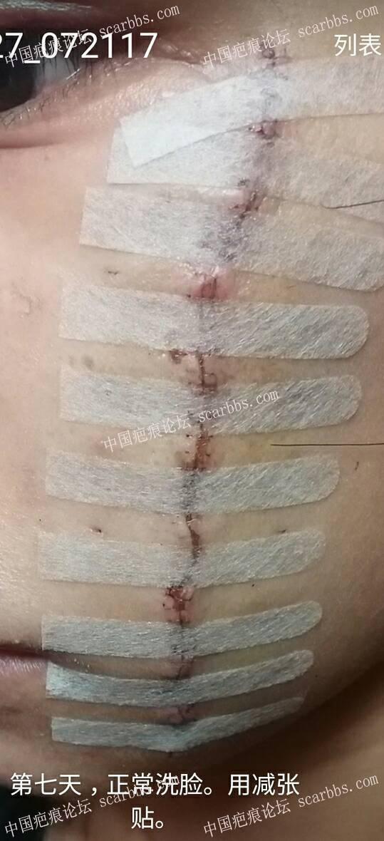 9.20号面部切缝手术,发出来给朋友们做个参考7-疤痕体质图片_疤痕疙瘩图片-中国疤痕论坛
