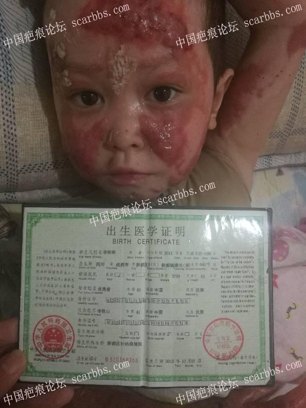 妹妹大面积烧伤严重!6-疤痕体质图片_疤痕疙瘩图片-中国疤痕论坛