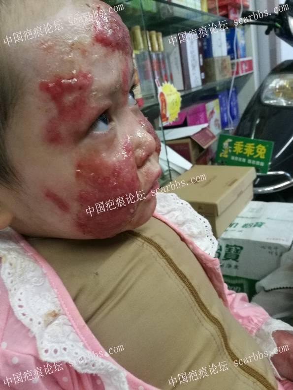 妹妹大面积烧伤严重!64-疤痕体质图片_疤痕疙瘩图片-中国疤痕论坛