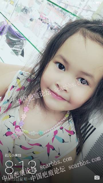 妹妹大面积烧伤严重!49-疤痕体质图片_疤痕疙瘩图片-中国疤痕论坛