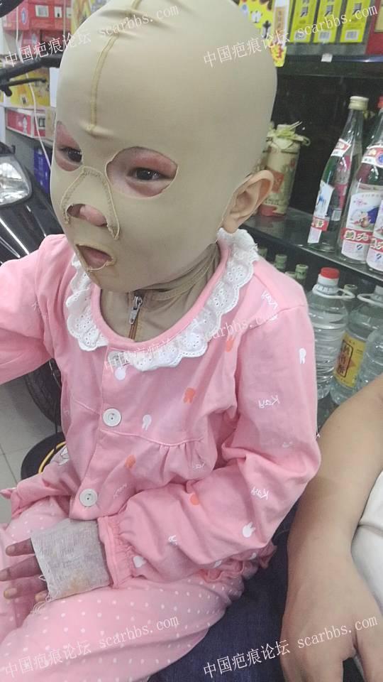 妹妹大面积烧伤严重!20-疤痕体质图片_疤痕疙瘩图片-中国疤痕论坛