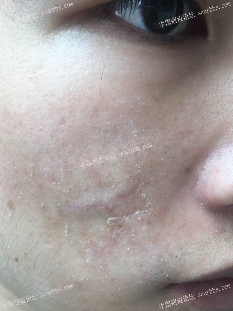 面部凹陷疤痕切除手术效果32-疤痕体质图片_疤痕疙瘩图片-中国疤痕论坛