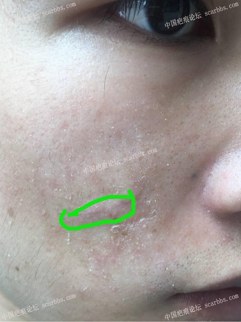 面部凹陷疤痕切除手术效果6-疤痕体质图片_疤痕疙瘩图片-中国疤痕论坛
