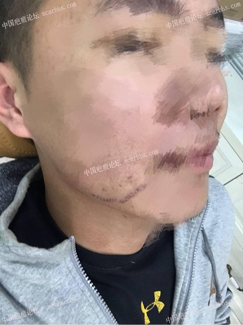 10月19下午面部疤痕手术恢复过程,和大家分享一下