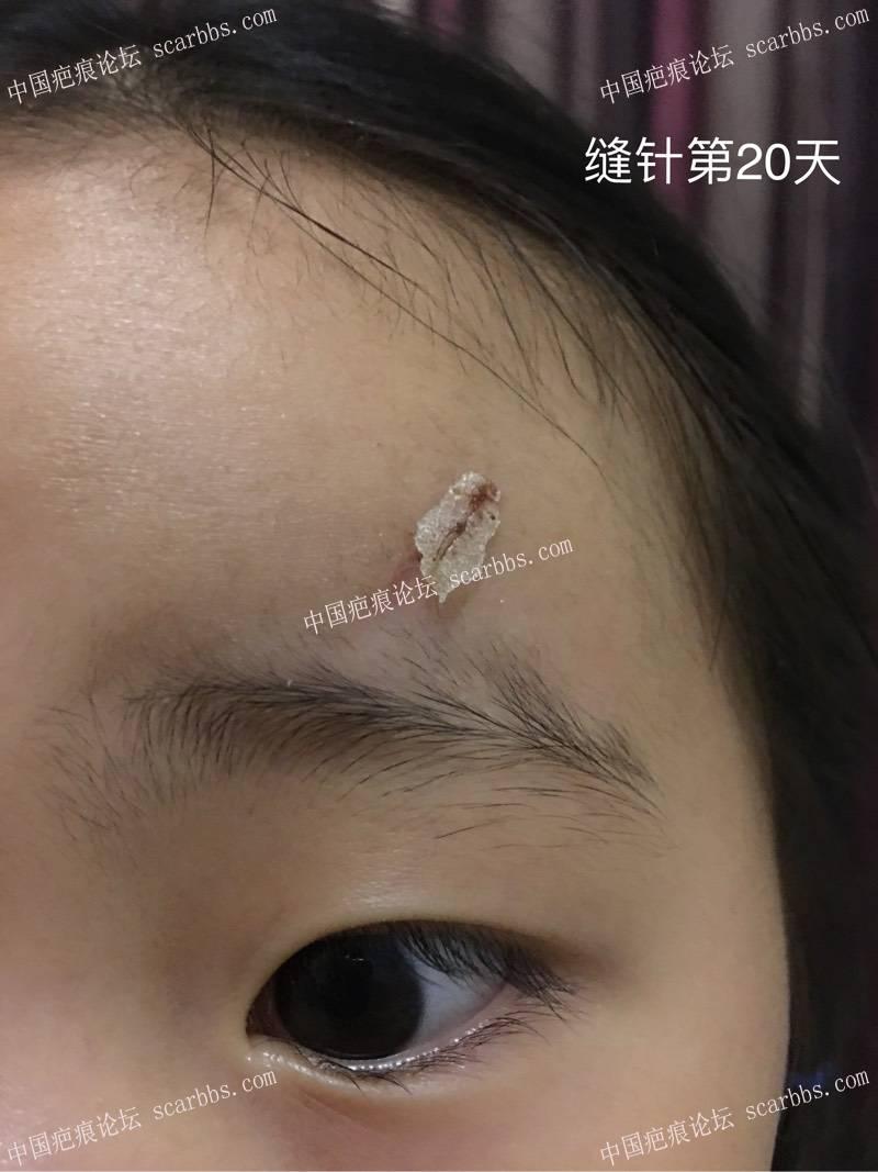 健身器械砸到额头,记录女儿的抗疤之路 美容针,美容线,美德加芭克,康瑞保,生长因子