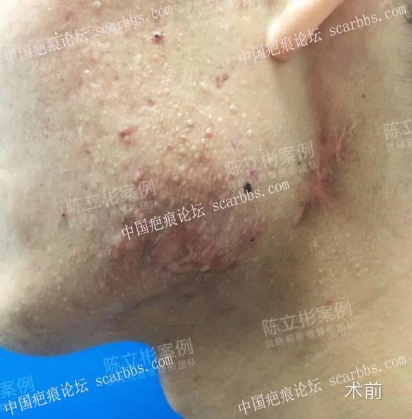 双下颌疤痕疙瘩,精细缝合手术+放疗,术后一年效果74-疤痕体质图片_疤痕疙瘩图片-中国疤痕论坛