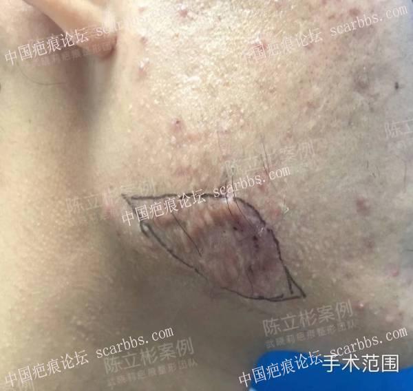 双下颌疤痕疙瘩,精细缝合手术+放疗,术后一年效果54-疤痕体质图片_疤痕疙瘩图片-中国疤痕论坛