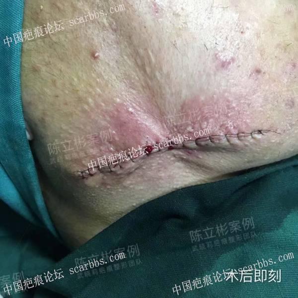 双下颌疤痕疙瘩,精细缝合手术+放疗,术后一年效果19-疤痕体质图片_疤痕疙瘩图片-中国疤痕论坛