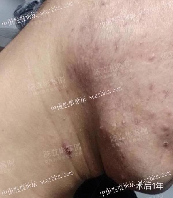 双下颌疤痕疙瘩,精细缝合手术+放疗,术后一年效果57-疤痕体质图片_疤痕疙瘩图片-中国疤痕论坛