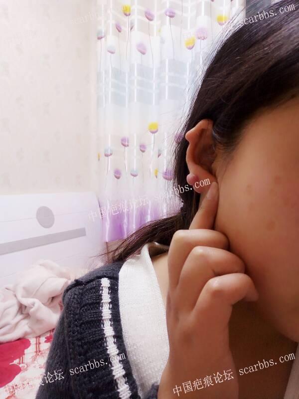 打耳洞长的疤痕疙瘩,一年了,没治疗过86-疤痕体质图片_疤痕疙瘩图片-中国疤痕论坛